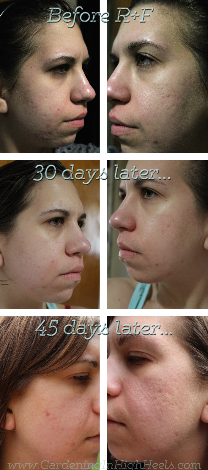 Rodan and Fields skincare transformation.